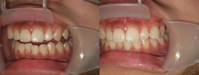 付け八重歯