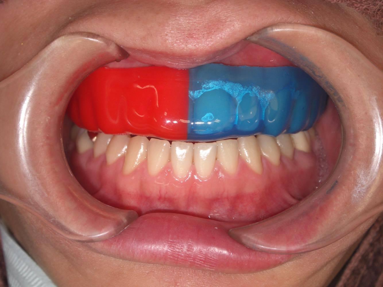 マウス ピース 歯ぎしり 夜間のマウスピースは4つの効果 エド日本橋歯科